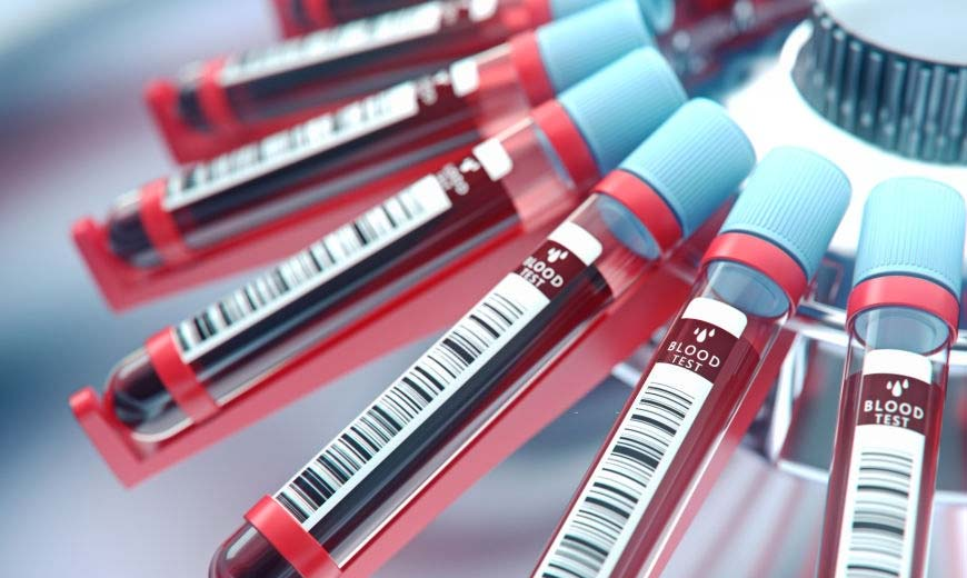 Кръвни изследвания при радикулит